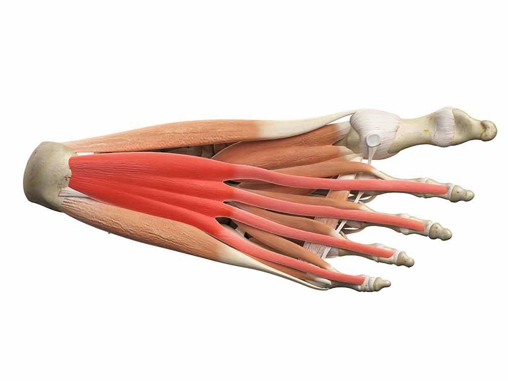 pijn aan de onderkant van de voet
